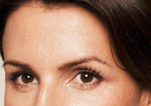 Rimpels onder de ogen en voorhoofd na