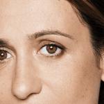 behandelingen - injectables - Rimpels onder de ogen na