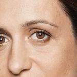 behandelingen - injectables - rimpels onder de ogen voor