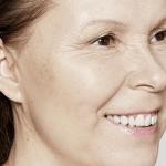 behandelingen - injectables - Skinbooster behandeling ervaring na
