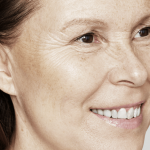 Behandelingen - injectables - Skinbooster behandeling ervaring voor