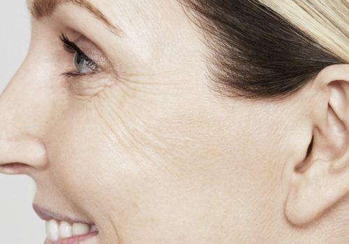 Skinboosters-gezicht-na