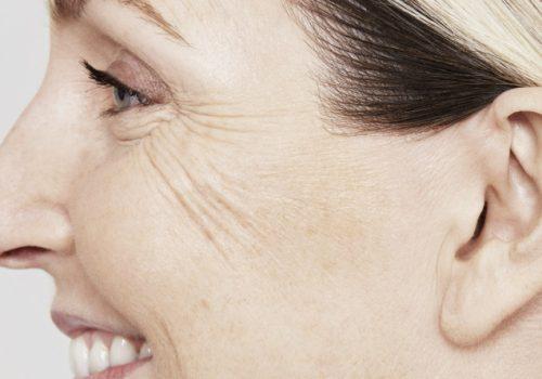 Skinboosters gezicht voor