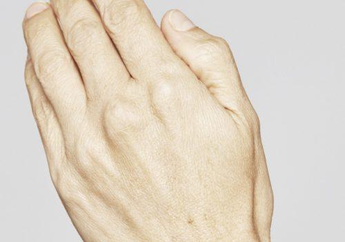 Skinboosters handen voor