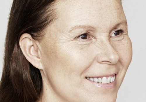 Skinboosters vrouw na
