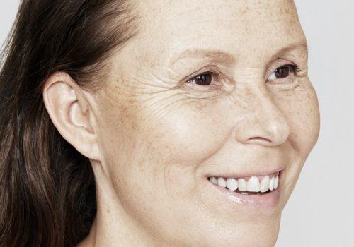 Skinboosters vrouw voor