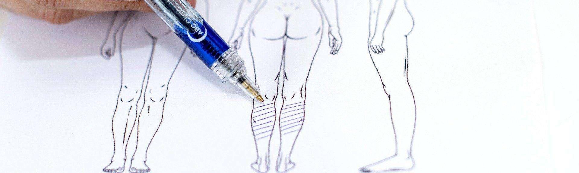 behandelingen - Liposuctie - kuiten
