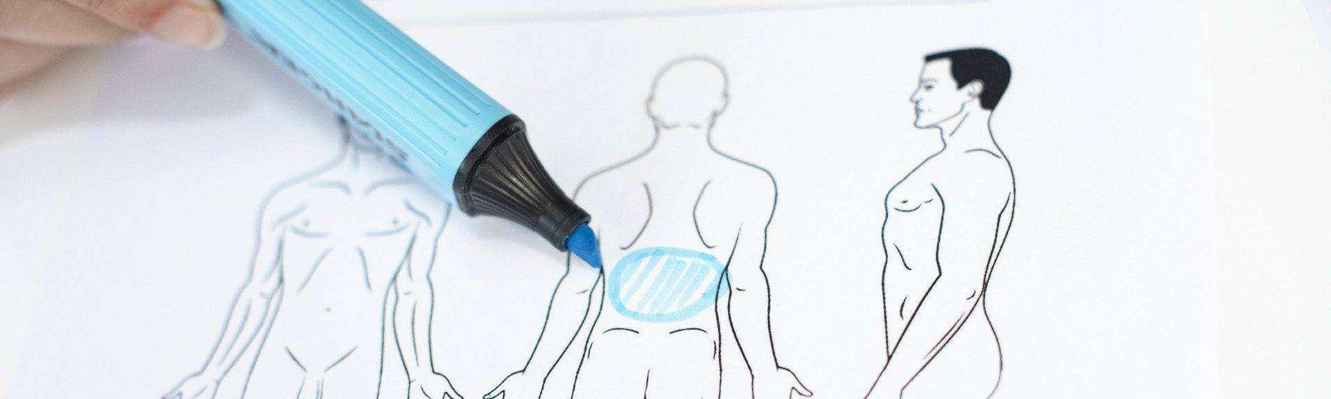 behandelingen - Liposuctie - rug