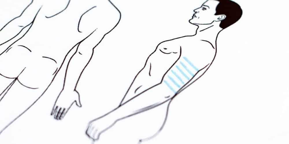behandelingen - liposuctie - bovenarmen