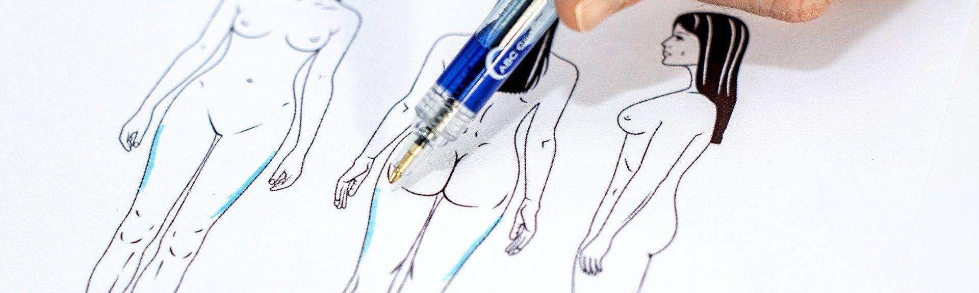behandelingen - liposuctie - buitenkant benen