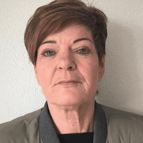 ervaringen - hangende mondhoeken - Carin