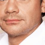 behandelingen - injectables - nasolabiale plooi verminderen na