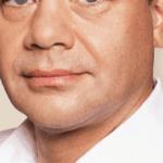 behandelingen - injectables - nasolabiale plooi verminderen voor