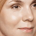behandelingen - huidverbetering - Acne litteken behandeling na