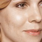 behandelingen - huidverbetering - Acne litteken behandeling voor