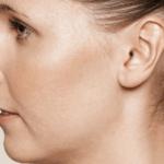 behandelingen - huidverbetering - Behandeling acne littekens na