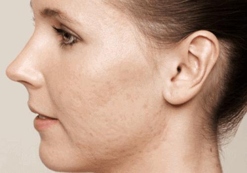 behandelingen - huidverbetering - Behandeling acne littekens voor