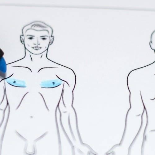 Behandelingen - borstcorrectie - Borstverkleining man