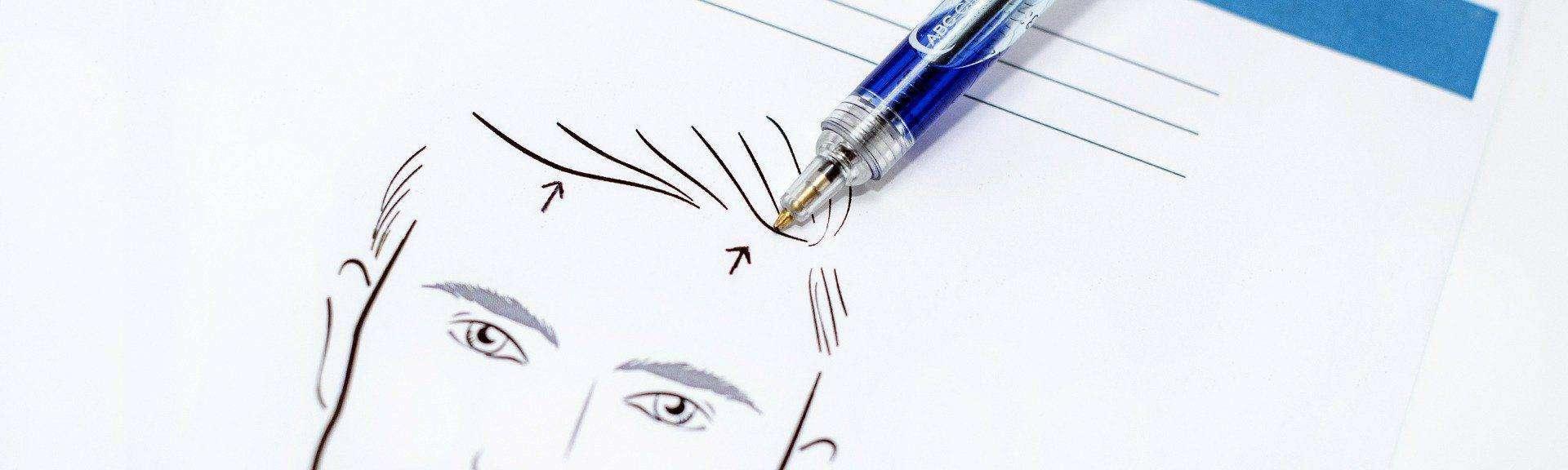 behandelingen - gezicht - facelift - voorhoofdslift