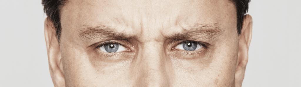 Behandelingen - injectables - donkere kringen onder de ogen