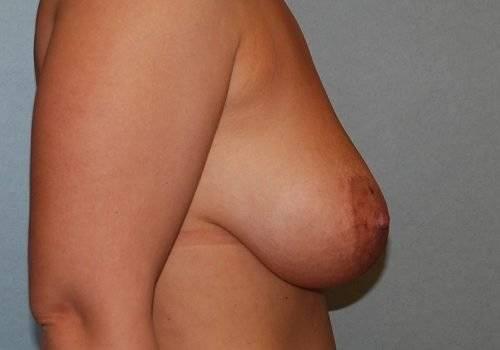behandelingen - borstcorrectie - Borstlift ervaring voor