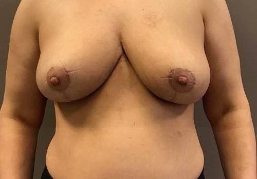 behandelingen - borstcorrectie - Borstlift foto's na