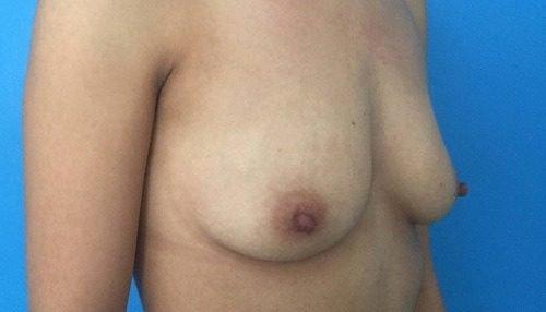 behandelingen - borstcorrectie - Borstvergroting ervaring voor