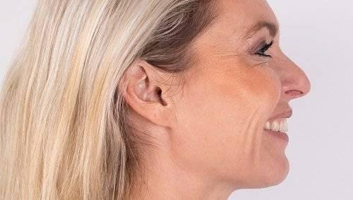 Botox Janka na
