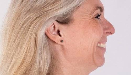 Botox Janka voor