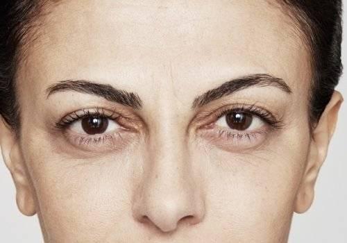 behandelingen - injectables - Botox-behandeling boze blik na