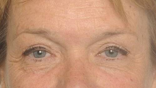 behandelingen - ooglidcorrectie - Bovenooglidcorrectie Breda na