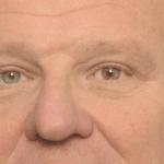 behandelingen - ooglidcorrectie - Bovenooglidcorrectie met wenkbrauwlift na
