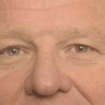behandelingen - ooglidcorrectie - Bovenooglidcorrectie met wenkbrauwlift voor