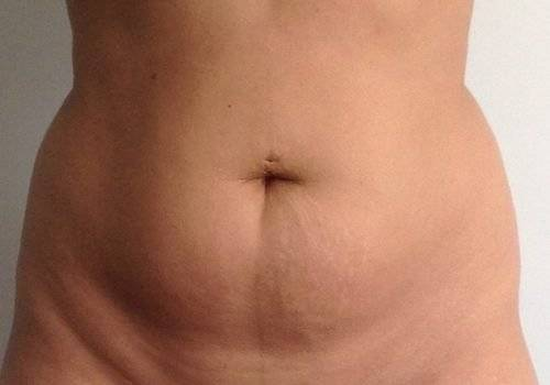 Behandelingen - liposuctie - Dikke buik ervaring voor