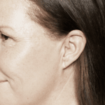 behandelingen - injectables - Droge huid behandeling na