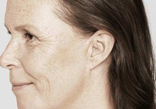 behandelingen - injectables - Droge huid behandeling voor