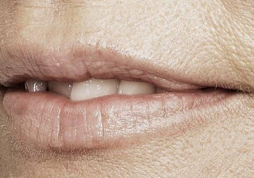 behandelingen - injectables - Droge lippen behandeling voor