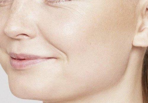 behandelingen - injectables - Dunne lippen opvullen voor