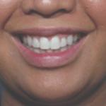 Behandelingen - injectables - Gummy smile botox na