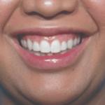 behandelingen - injectables - Gummy smile botox voor