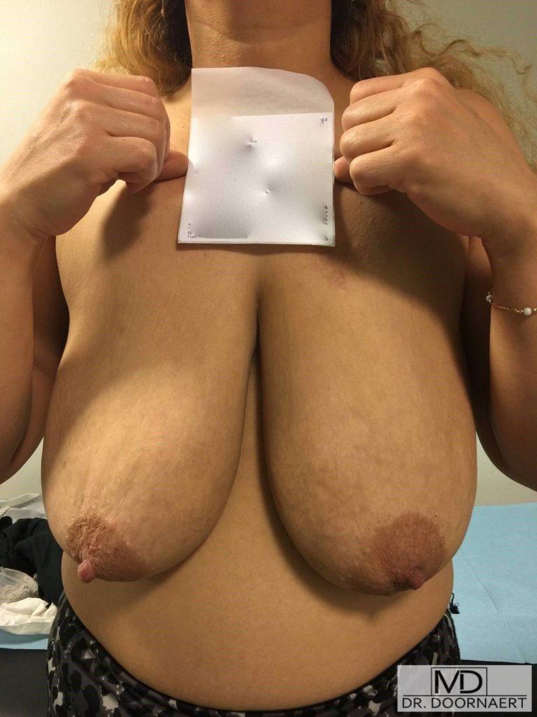 behandelingen - borstcorrectie - Hangborsten foto's voor