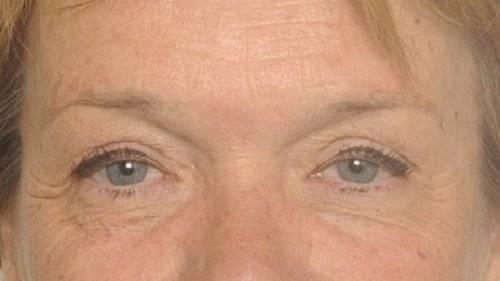 Behandelingen - ooglidcorrectie - Hangende oogleden Breda na