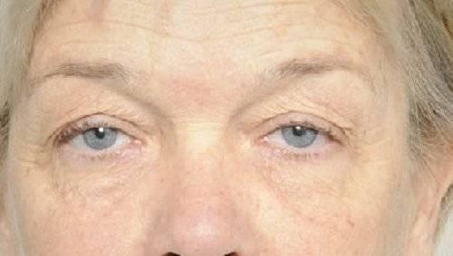Behandelingen - ooglidcorrectie - Hangende oogleden Breda voor