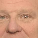 Resultaat wenkbrauwlift bij hangende oogleden