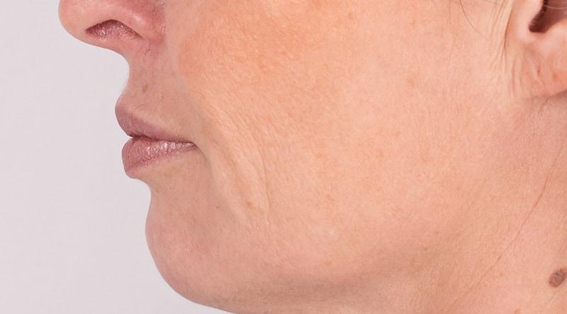 Janka lippen opvullen na