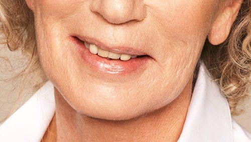 Kaaklijn verstrakken vrouw na