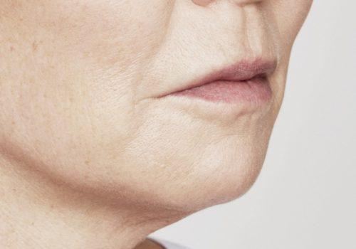 Kin- en lipfillers na