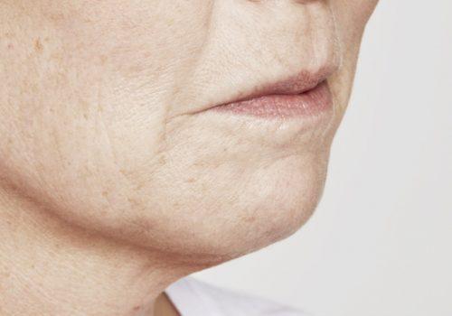 Kin- en lipfillers voor