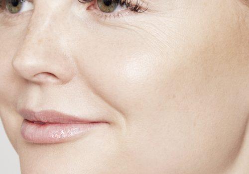 Lipfillers na