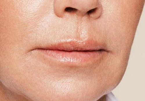 Lipfillers vrouw na